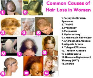 Thinning hair, receding hair line and hair loss often causes lots of ...