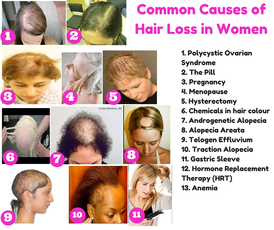 Hairstyles For Alopecia Areata : The top 10 causes of hair loss in women and what you can do